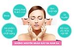 Nám da và phương pháp điều trị hiệu quả