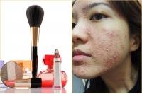 Dấu hiệu nhận biết và nguyên nhân tình trạng da bị dị ứng