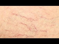 Dãn mao mạch – nguyên nhân dẫn đến dãn mao mạch