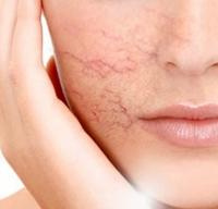 Nguyên nhân tình trạng nổi gân máu vùng da mặt