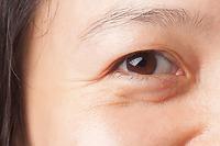 Đi tìm phương pháp khắc phục sụp mí mắt cùng Shapeline