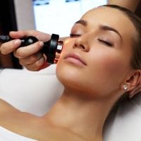 Điều trị nám và sắc tố da shr motion