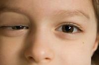 Tìm hiểu về tình trạng sụp mí mắt
