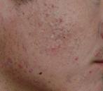 Điều trị da mụn, mụn đầu đen