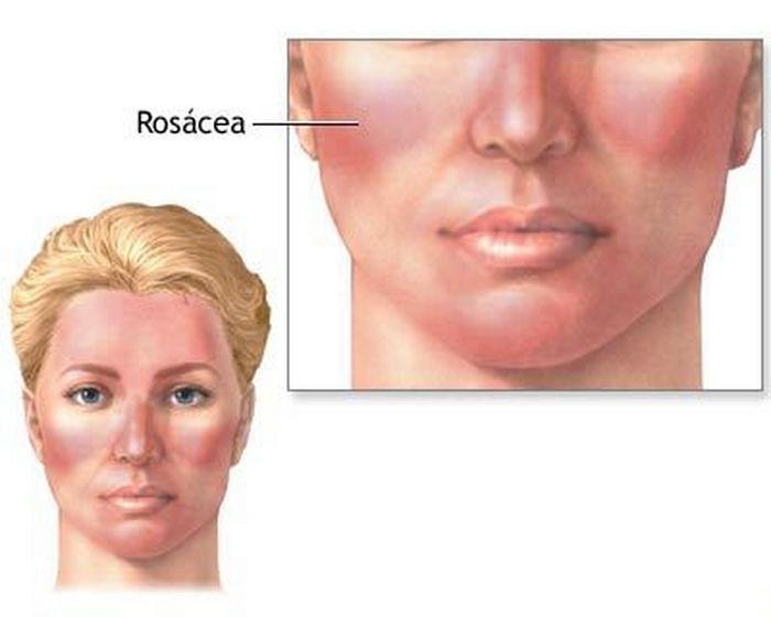Bệnh da đỏ ROSACEA