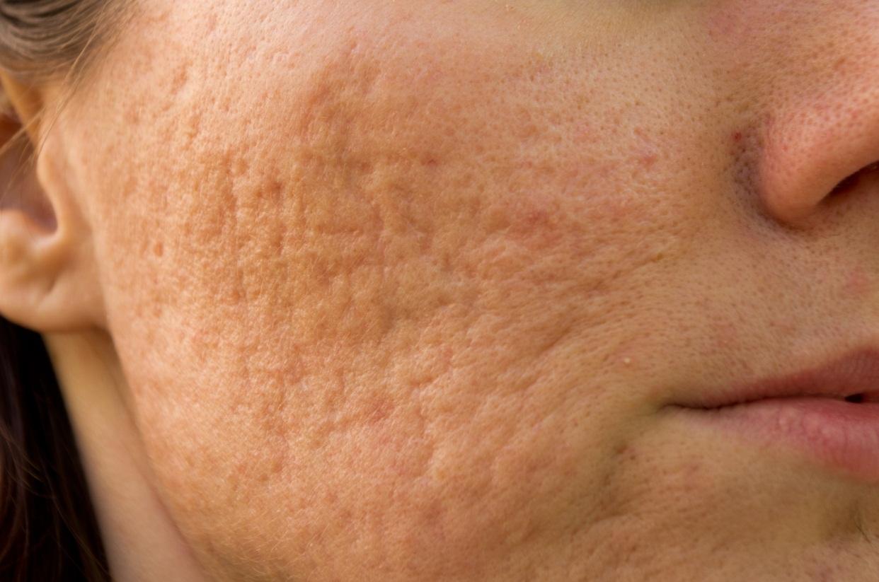 Nguyên nhân gây sẹo lõm phổ biến hiện nay