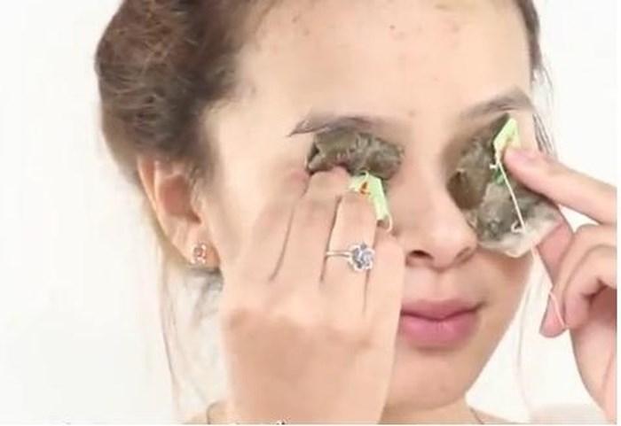 Điều trị mắt thâm quầng bằng túi trà xanh
