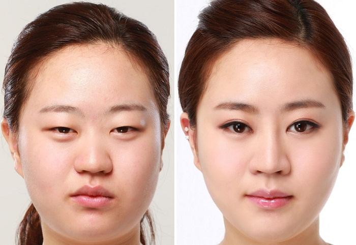 Thẩm mỹ mắt 2 mí giúp bạn tươi trẻ hơn