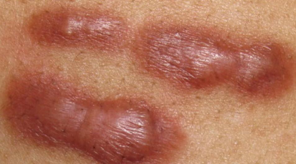 Cách trị sẹo lồi - Chuyên gia hàng đầu giải thích cách điều trị sẹo lồi