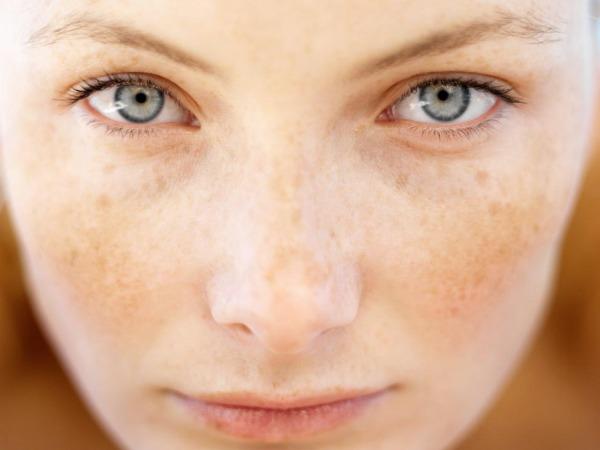 Nấm da mặt ảnh hưởng nghiêm trọng đến tâm lý người bệnh