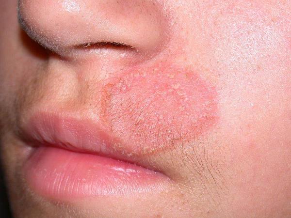 Nguyên nhân gây nấm da mặt