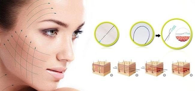 Phương pháp căng da mặt với chỉ sinh học