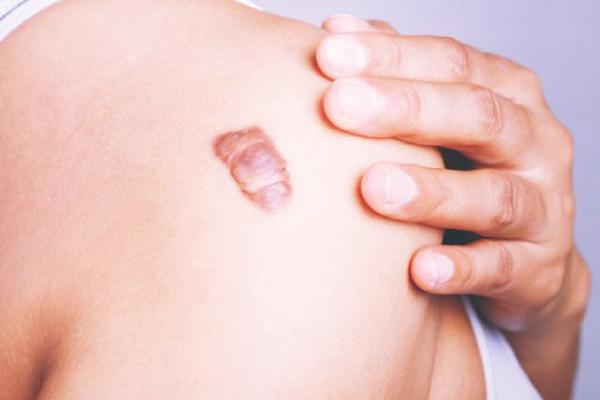 Sẹo phì đại chỉ phát triển trong phạm vi vết thương