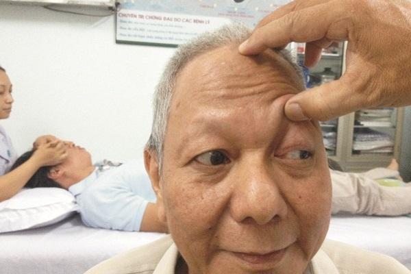 Sụp mí mắt luôn khiến người bệnh cảm thấy khó chịu
