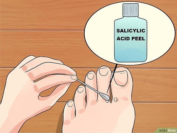 Trị mụn cóc bằng Acid Salicylic