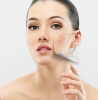 Da sẹo và điều trị sẹo như thế nào