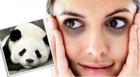 Trị thâm quầng mắt hiệu quả nhất