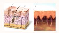 Điều trị nám da và tàn nhang