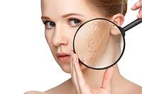 9 biện pháp khắc phục da khô bạn nên biết