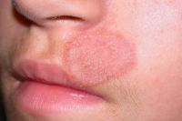 Nấm da mặt và những điều bạn cần làm