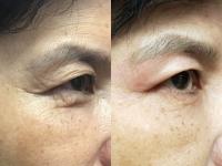 Xóa nếp nhăn vùng mắt bằng công nghệ Plasma