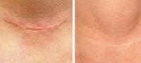 Xóa sẹo sau phẫu thuật - Trị sẹo lồi sau phẫu thuật lâu năm tại TPHCM